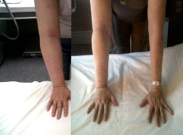 Lymphedema Mld Edema Cancer Surgery